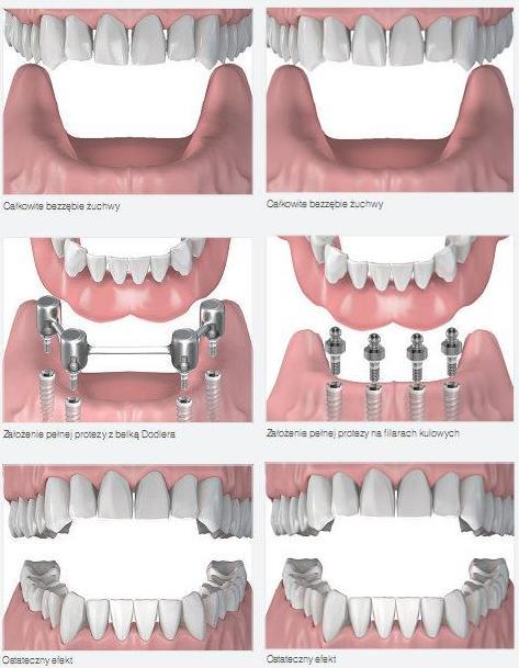 Protezy ruchome na implantach